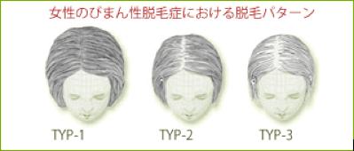 びまん性脱毛症