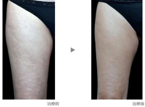 ヴァンキッシュ大腿症例