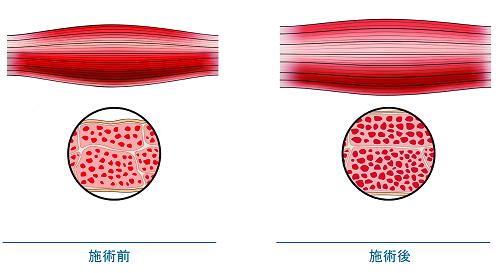 筋肉の密度と体積増加