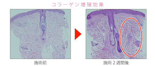 コラーゲン増殖