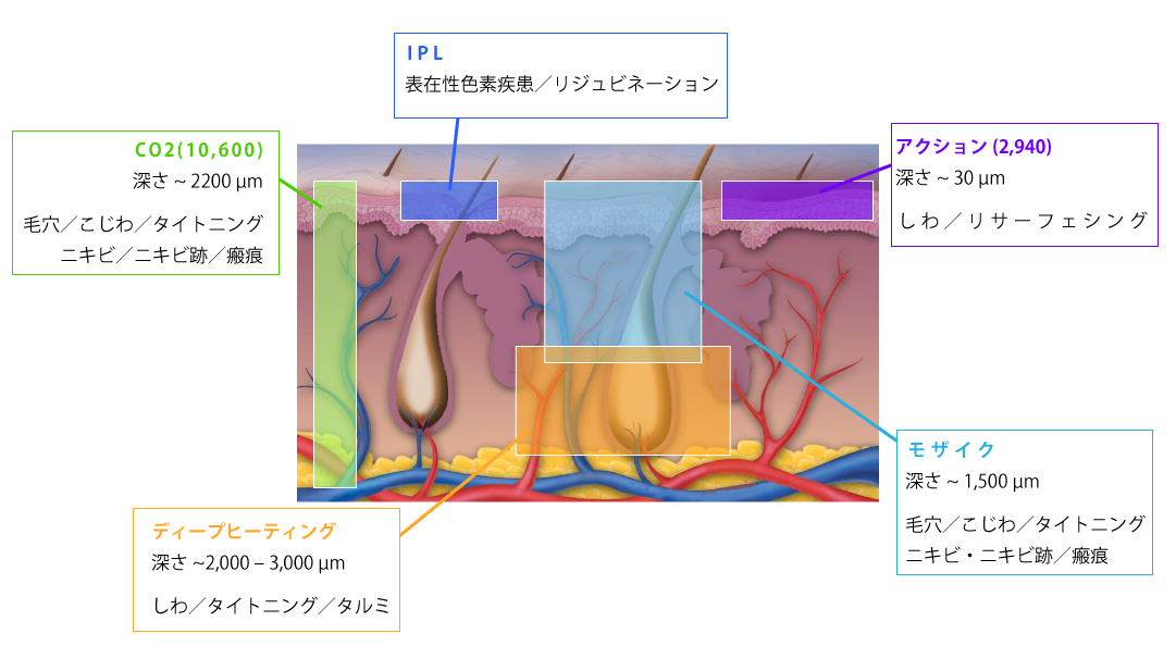 「Er:Glass」1550nmの特徴的波長